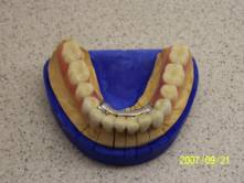 Precision Attached Dentures 5