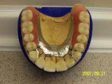 Precision Attached Dentures 7