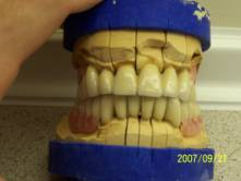 Precision Attached Dentures 9