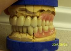 Precision Attached Dentures 10