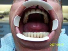 Precision Attached Dentures 11