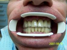 Precision Attached Dentures 13