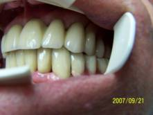 Precision Attached Dentures 14